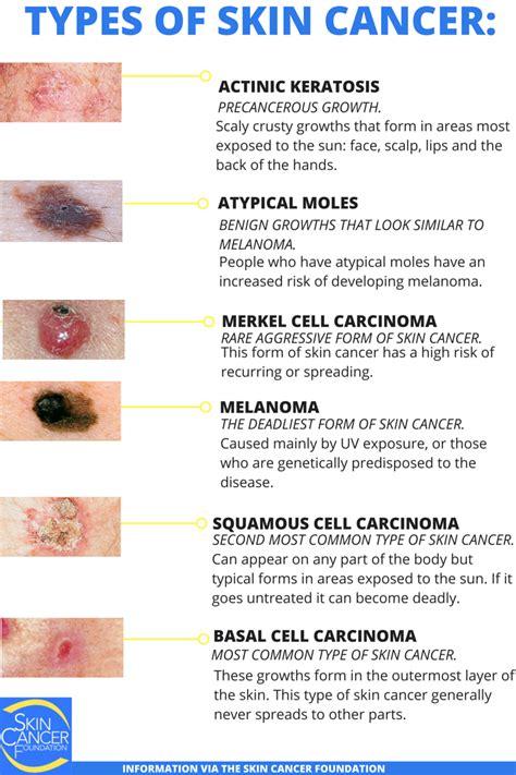 Carcinoma Duttale Infiltrante G3 Sopravvivenza image 2