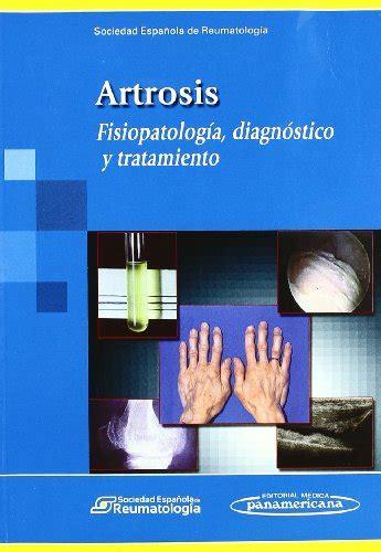 Artrosis Fisiopatolo Gia Diagnostico Y Tratamiento