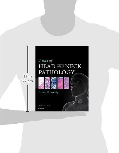 Atlas Of Head And Neck Pathology 3e Atlas Of Surgical Pathology