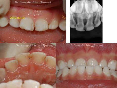 Crowns Used For Primary Teeth: Crowns for Primary teeth
