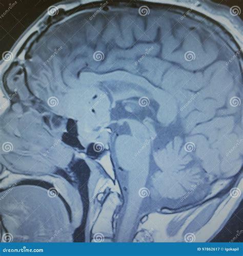 EX288 Brain Exam