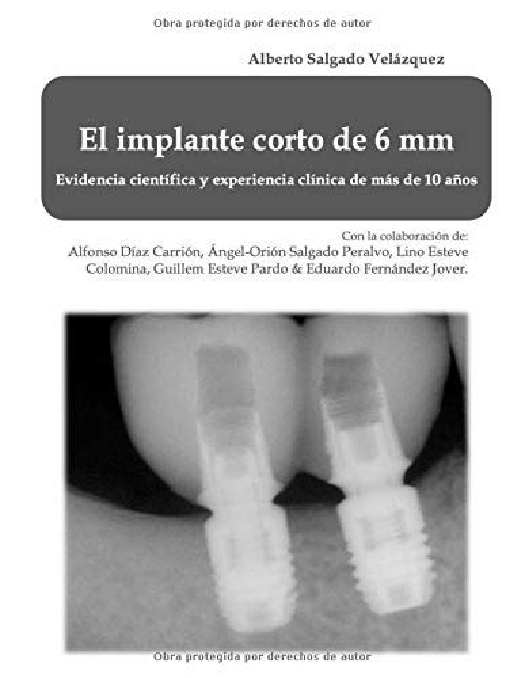 El Implante Corto De 6 Mm Evidencia Cientifica Y Experiencia De Mas De 10 Anos