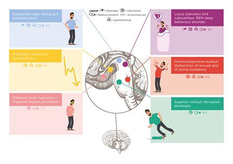 Formes Cliniques & Diagnostic De La Maladie De Parkinson