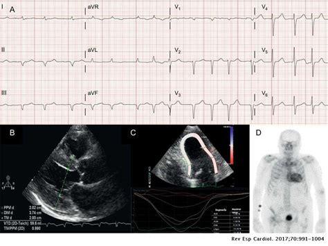 Imagen Multimodal en Amiloidosis Cardíaca: Y hallazgos de cardiomiopatía por amiloidosis