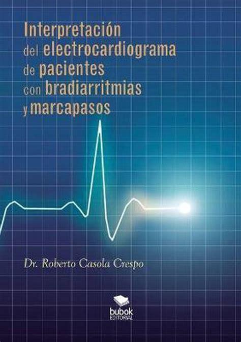 Interpretacion Del Electrocardiograma De Pacientes Con Bradiarritmias Y Marcapasos