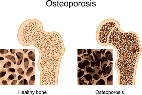 L Osteoporose