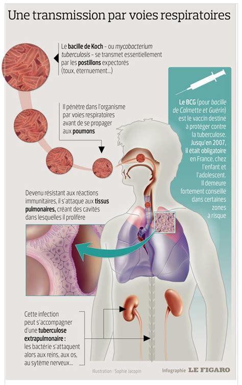 La guérison de la tuberculose pulmonaire