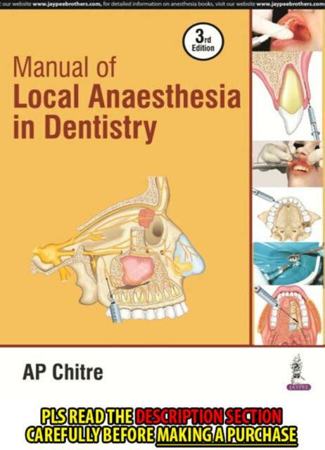 Manual Of Local Anesthesia Chitre