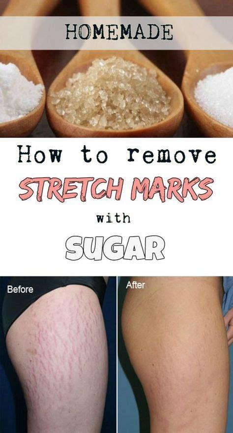 Stretch Mark Eraser Get Rid Of Stretch Marks With Natural Solution Epub Wwww Freepdfmanuales Xyz