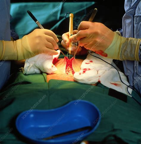 Surgery of the Prostate